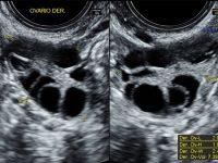 Tema: Rol actual del US en el sindrome de ovario poliquístico